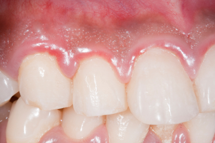 gum-disease-types